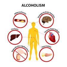 Alcoholic Consumption