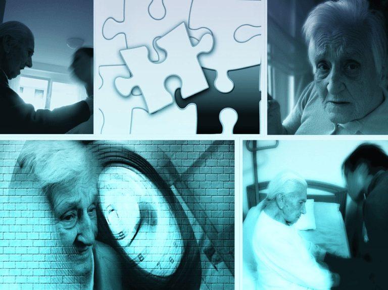 Exelon as a Treatment for Parkinson's and Alzheimer's Dementia